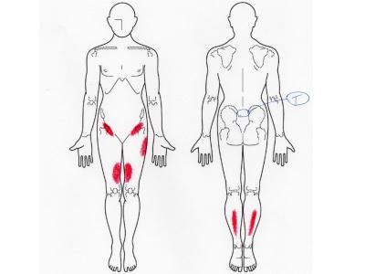 腰痛,股関節痛